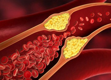 Что такое ЛПНП и ЛПВП и почему холестерин не вреден?